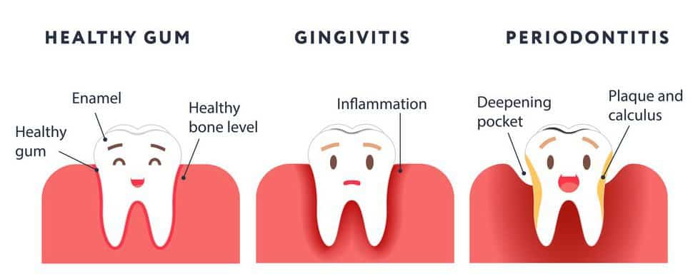 Healthy gums, gingivitis, and periodontitis
